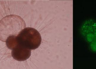 Microscopische foto's van foraminiferen