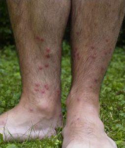 Cercariën dermatitis (zwemmersjeuk) - Foto: Cornellier / CC BY-SA 3.0