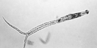 Larve van de platworm (cercaria) - Foto: Centers for Disease Control and Prevention