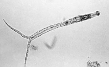 Larve van de platworm (cercaria) - Foto: Centers for Disease Control and Prevention